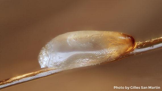 close-up-lice-egg