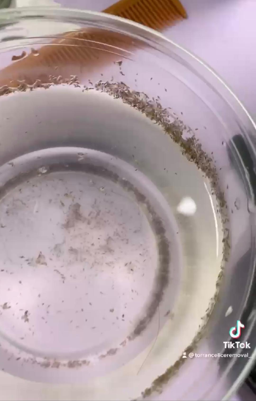 lice bowl